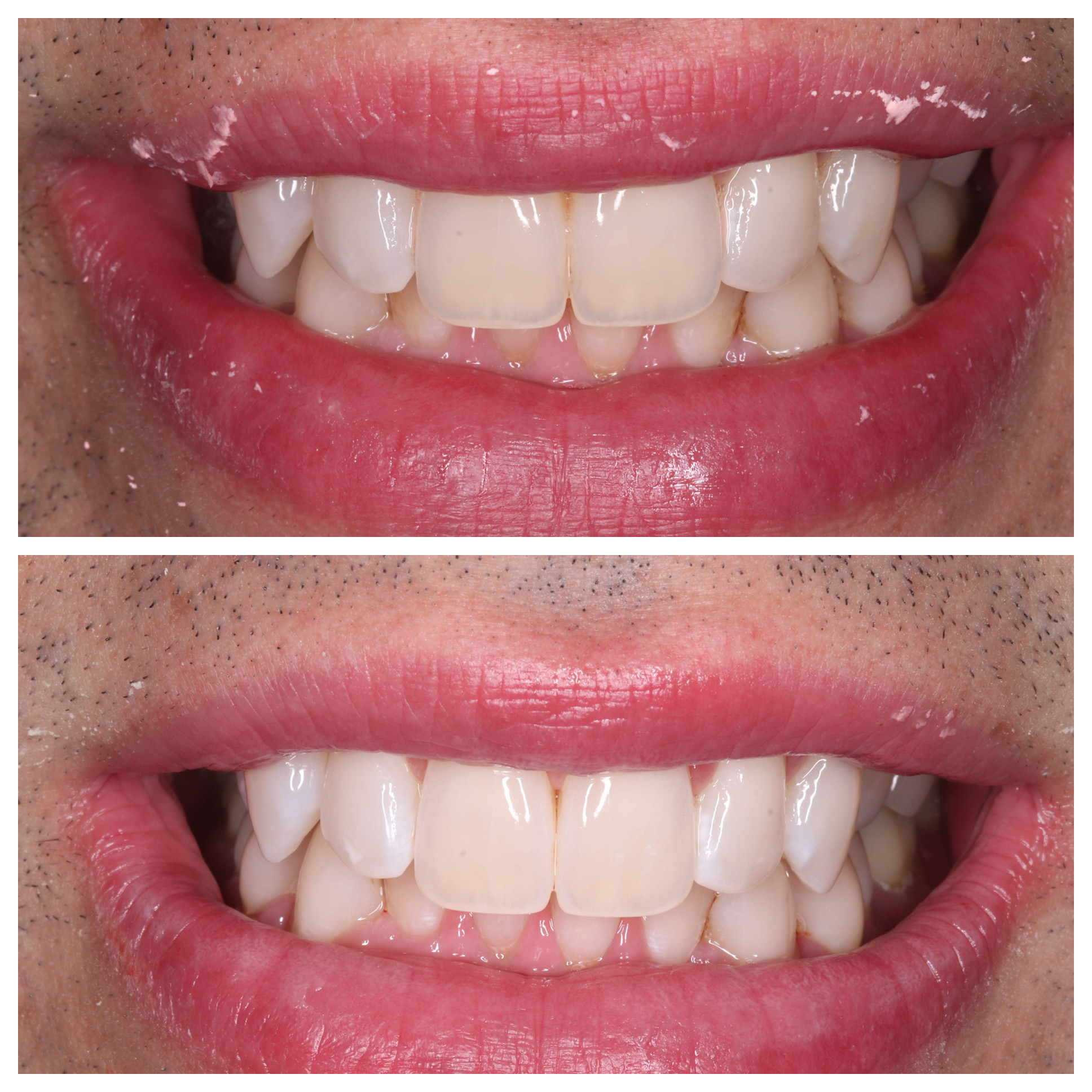 teeth whitening Dr Rhona Eskander